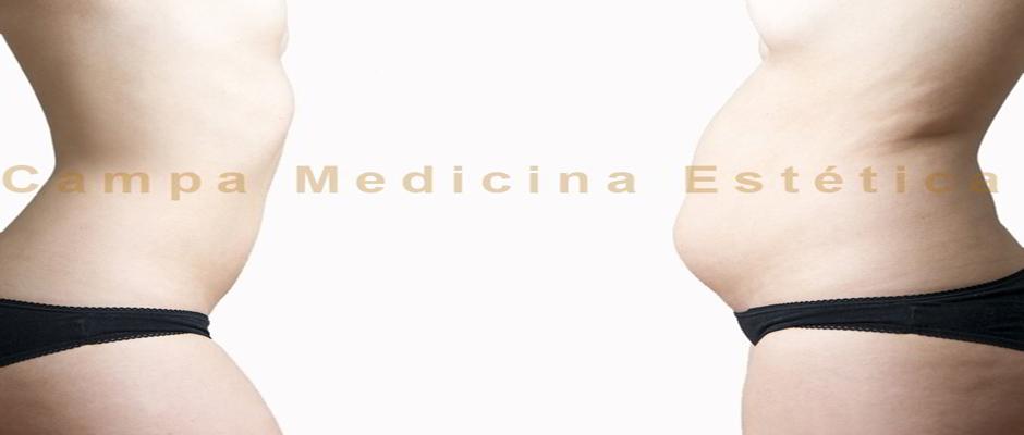 Lipomodelación: Sin cicatrices, sin anestesia y sin tiempo de recuperación