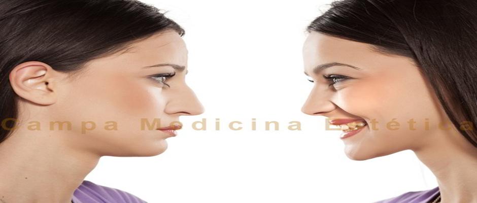 La rinomodelacion es una tecnica que mejora la estetica de la nariz. Es el procedimiento menos agresivo
