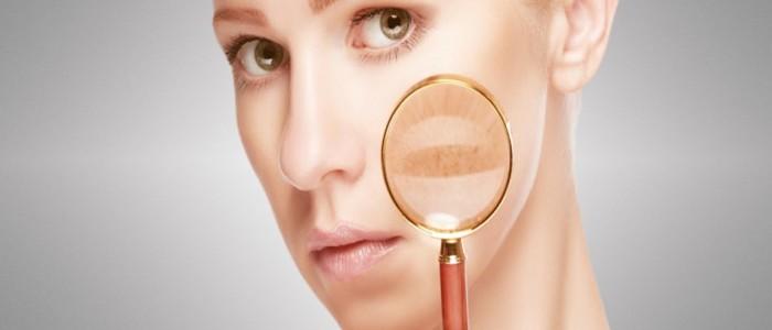 Vigila las manchas y evita el cáncer
