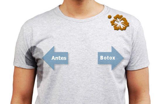 Clínica Campa somos expertos en la aplicación de botox para eliminar el sudor