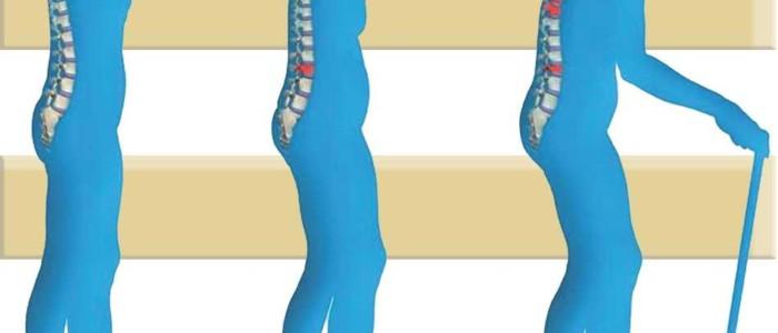 Osteoporosis: cómo las hormonas bioidénticas te pueden ayudar